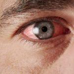Покраснение глаз