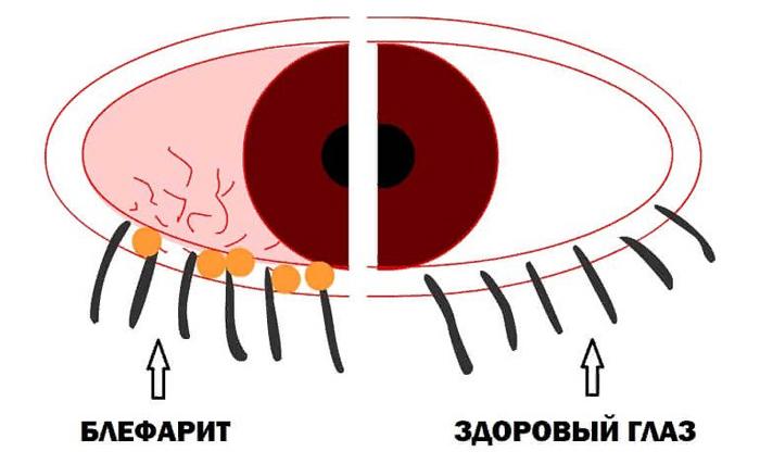 Красное глазное яблоко почему