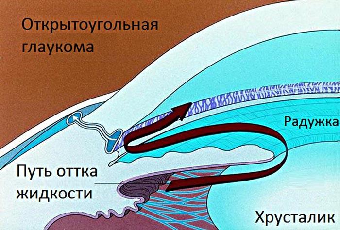 Схематическое изображение открытоугольной глаукомы.