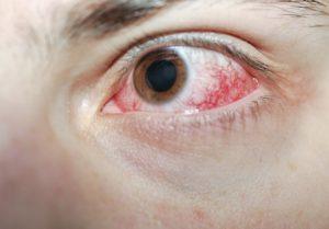 При поражении глаза кислотными веществами
