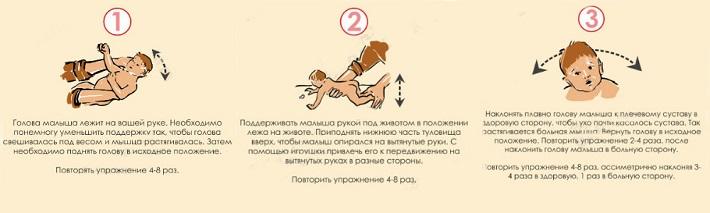 Лечение кривошеи у новорожденных различными методами