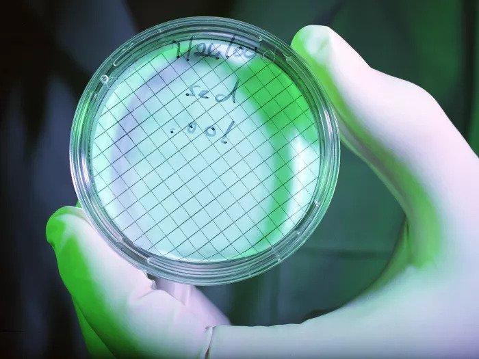 Чашка Петри с бактериями