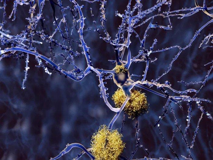 Накопление амилоидного бета-налета в головном мозге пациента с болезнью Альцгеймера