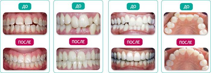 Результат после лечения зубов брекетами