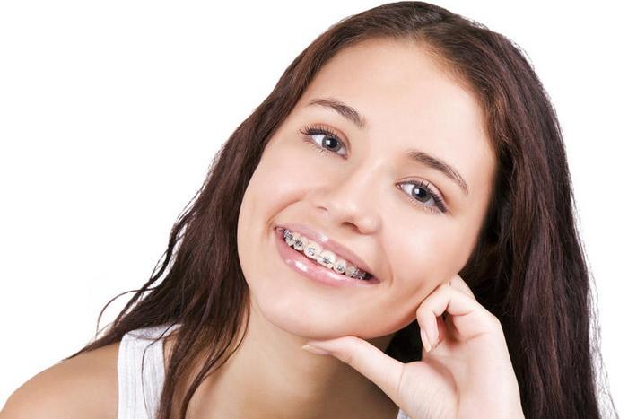 Зубные пластины или брекеты. Сравниванием что лучше
