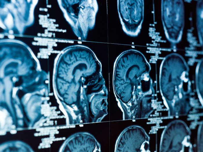 КТ обзор черепа и мозга (ShutterStock)