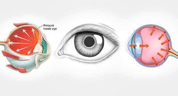 Фльфаган р глазные капли инструкция