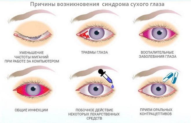 Синдром сухого глаза