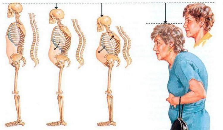 Изменения в костях при сгорбленности