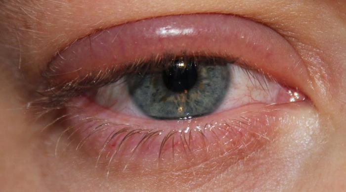 Артелак баланс глазные капли инструкция