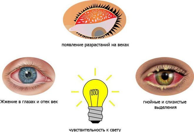 Особенности диагностики и лечения хламидийного конъюнктивита