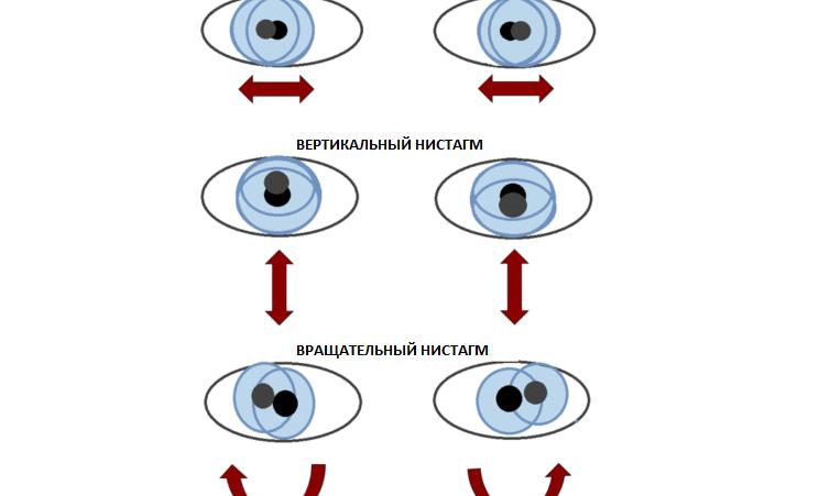 Нистагм или тремор глаз