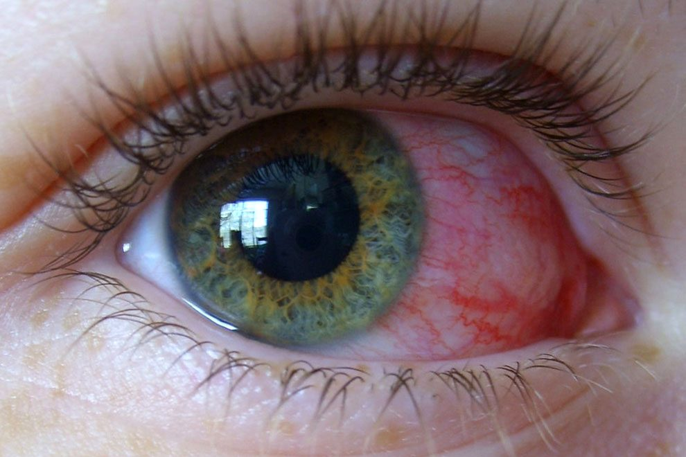 повышенная чувствительность глаз