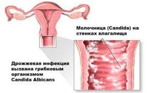 Препараты от молочницы при грудном вскармливании: свечи, таблетки и пр.