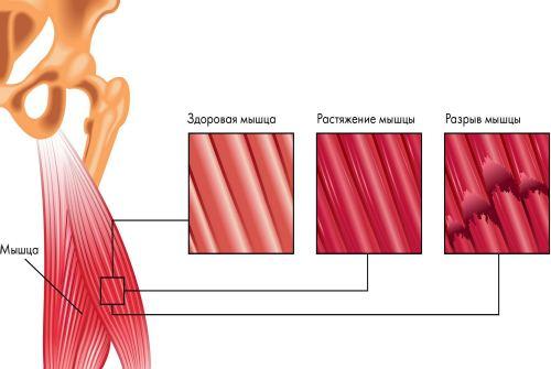 повреждение мышцы
