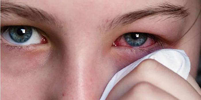 Покраснение глазного яблока причины и лечение