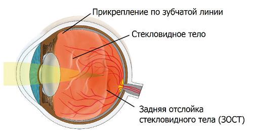 Отслойка стекловидного тела