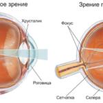 Зрение при астигматизме