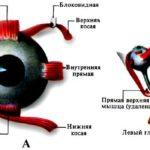 Потеря мышечного тонуса глазного яблока