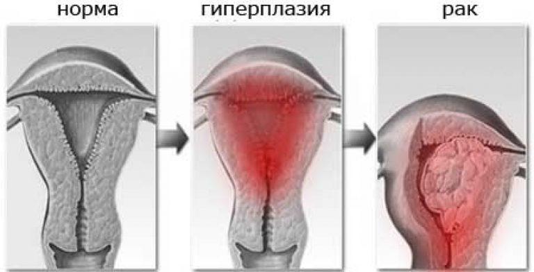 Рисунок гиперплазии и рака