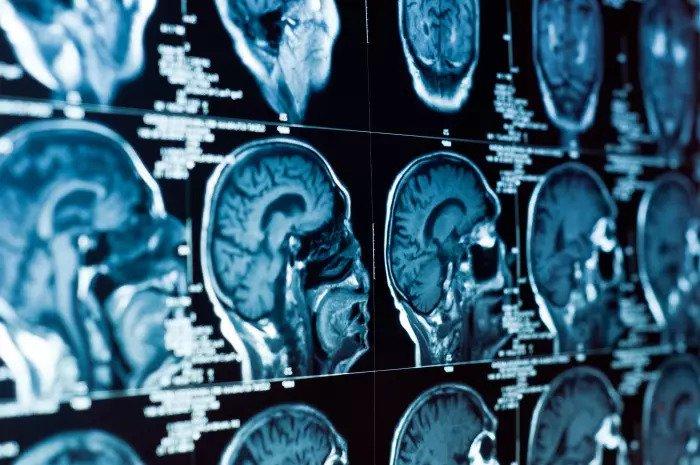 Компьютерная томография черепа и мозга