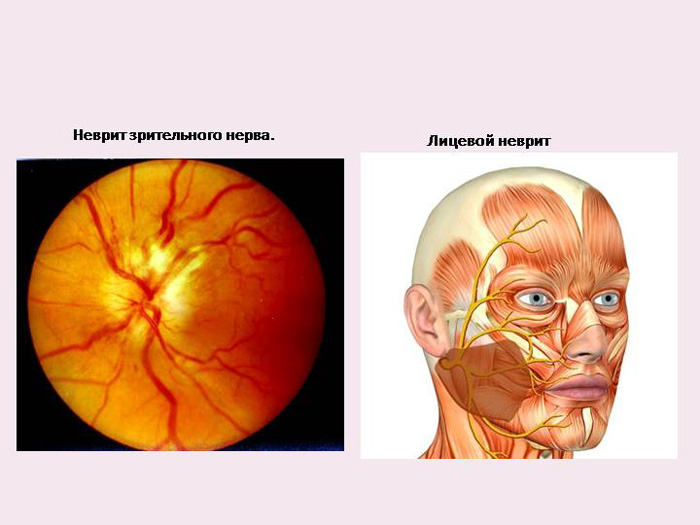 Неврит зрительного нерва ретробульварный