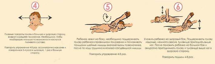 гимнастика при кривошее у грудничка 2