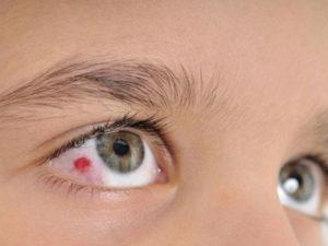 Лопнувший сосуд глаза