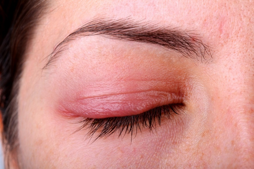 глаза при аллергии
