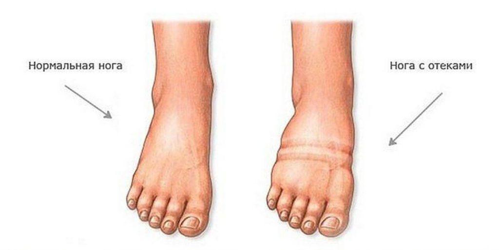 Сравнение нормально ноги и отекшей