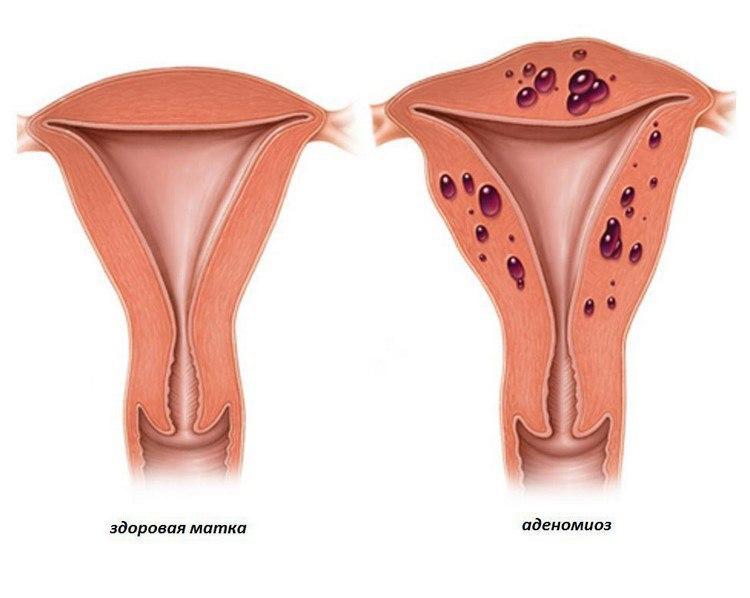 В чем опасность симбиоза миомы матки и аденомиоза?