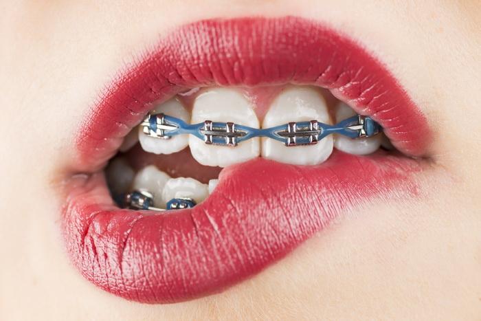Разница между брекет-системами и зубными пластинами
