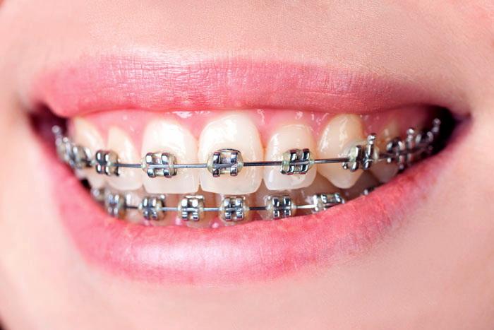 Вестибулярная брекет-система устанавливается на внешней поверхности зубного ряда