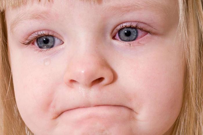 Конъюнктивит у ребенка лечение в домашних условиях