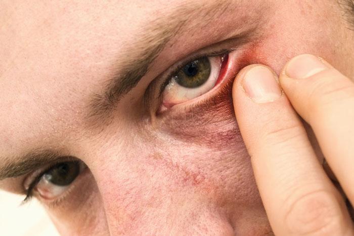 Ангиоспазм сетчатки глаза что это такое
