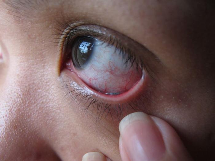 Боль при движении в глазном яблоке