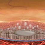Серозная хориоретинопатия