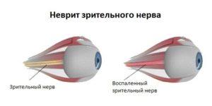 Лечение ретробульварного неврита зрительного нерва