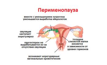 Состояние женских половых органов во время менопаузы