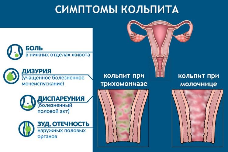 Как лечить атрофический кольпит в менопаузе?