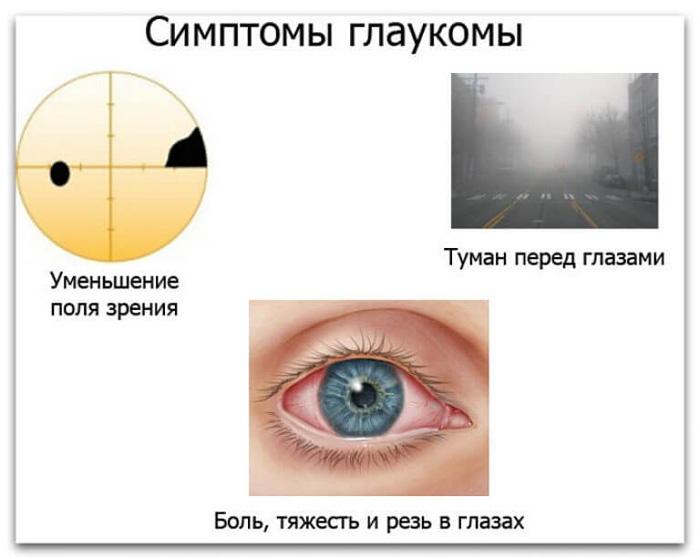 Симптомы глаукомы.