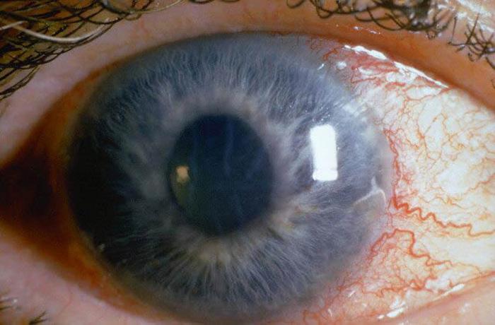 Ранняя диагностика открытоугольной глаукомы.