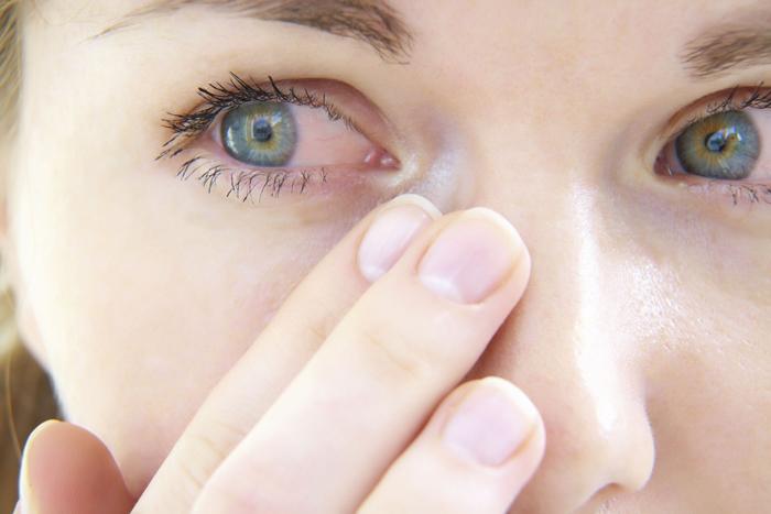 Красные глаза причины
