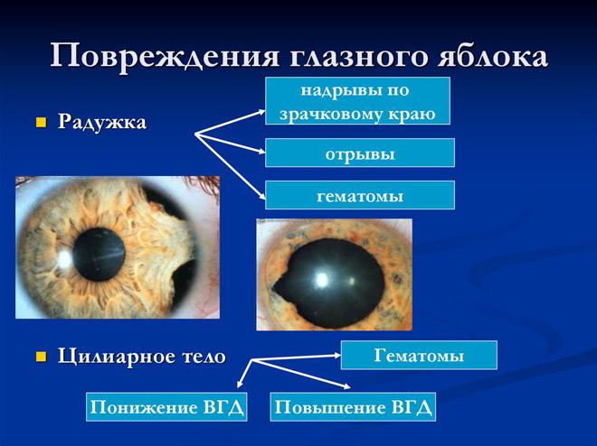 Повреждение глазного яблока
