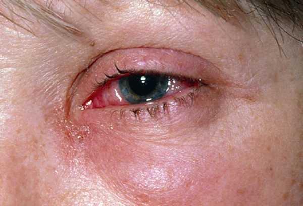 что такое роговица глаза