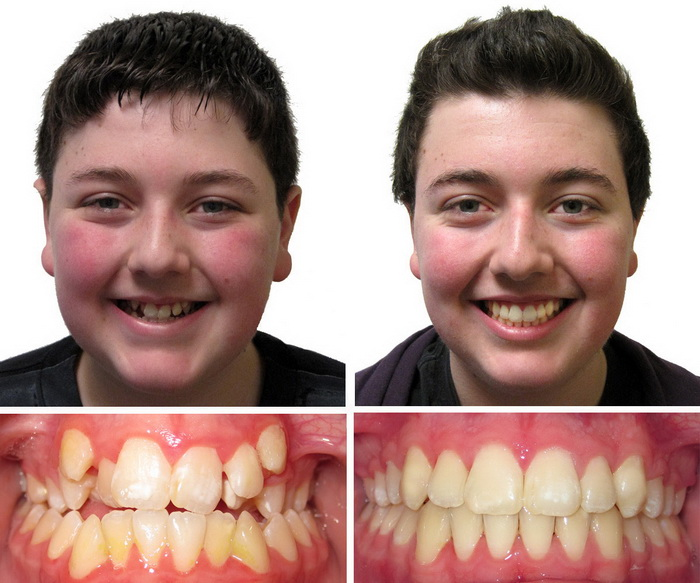 Фото До и После лечения аномального прикуса