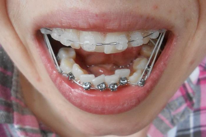 Как носять зубные тяги