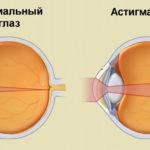 Астигматизм и здоровый глаз