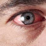 Воспаление органа зрения