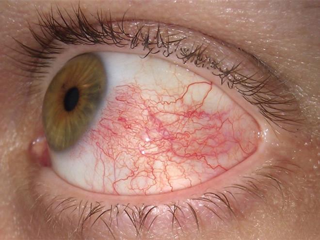 Воспаление глазных сосудов